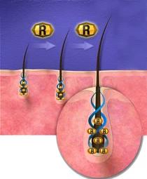 Pôsobenie DHT na vlasové folikuly 4