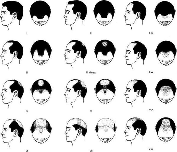 Norwoodova stupnica vypadávania vlasov u mužov