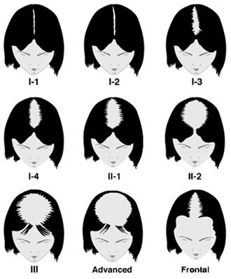 Savinova stupnica vypadávania vlasov u žien