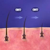 Pôsobenie T a DHT na vlasové folikuly 4