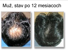 Výsledky po 12 mesiacoch
